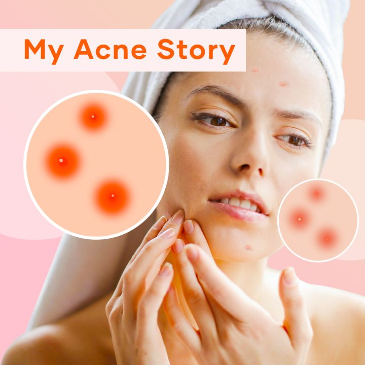 From Severe Acne to Clear Skin | Cherie Users' Acne Stories