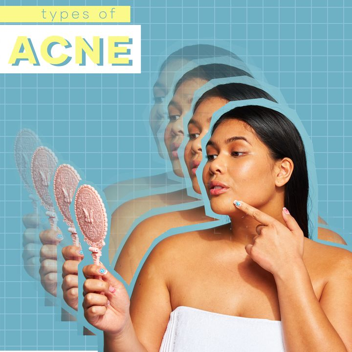 The Main Types of Acne — And How to Treat Them