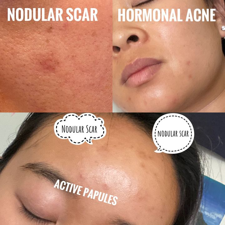 how to deal with acne [do's/don't's]